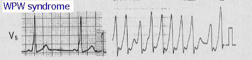 .環器疾患:心内膜炎、大動脈解離、不整脈、弁膜症
